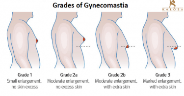 The Different Grades and Causes of Gynecomastia